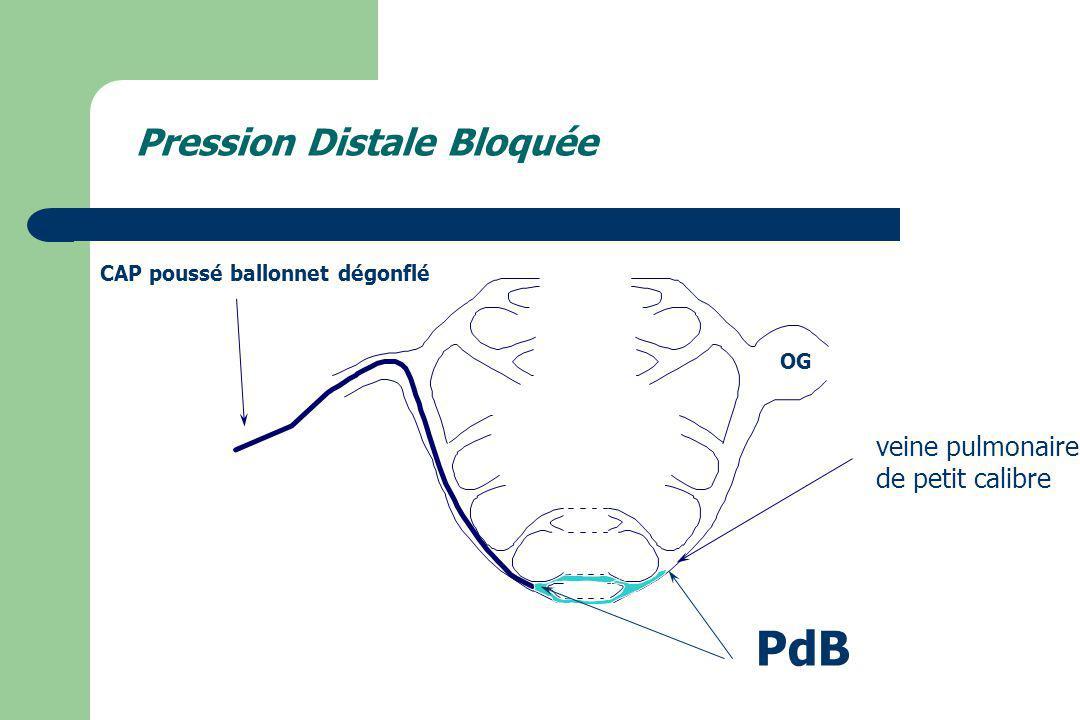 PdB Pression Distale Bloquée veine pulmonaire de petit calibre
