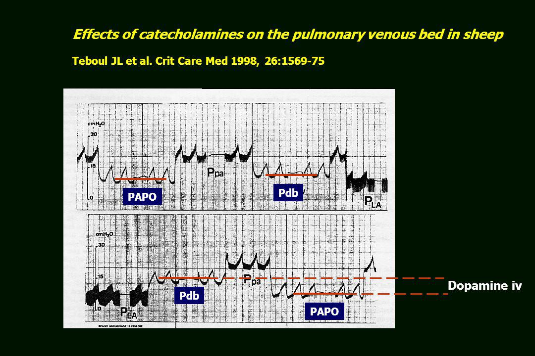 Effects of catecholamines on the pulmonary venous bed in sheep