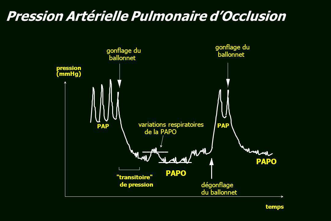 variations respiratoires