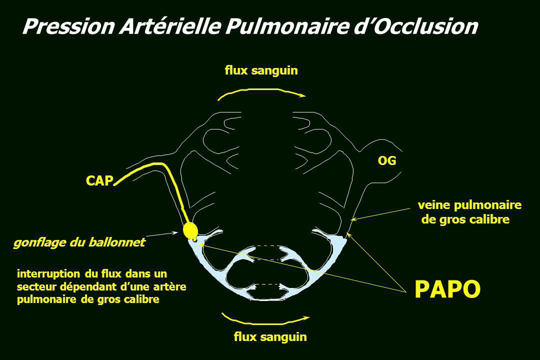 PAPO Pression Artérielle Pulmonaire d'Occlusion CAP flux sanguin OG