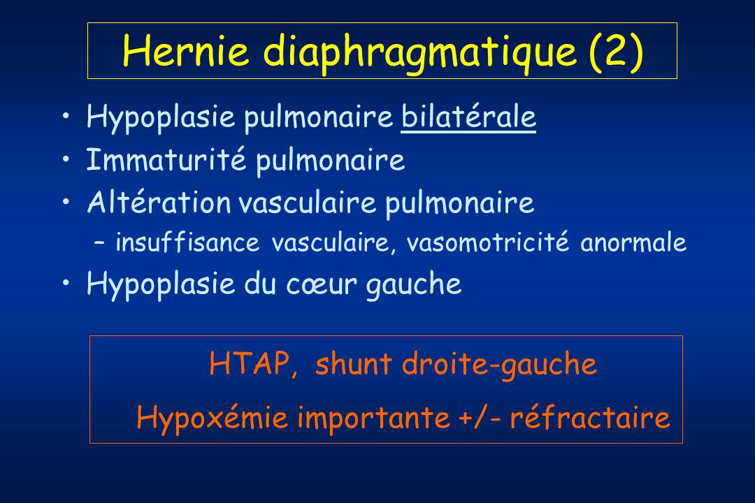 Hernie diaphragmatique (2)