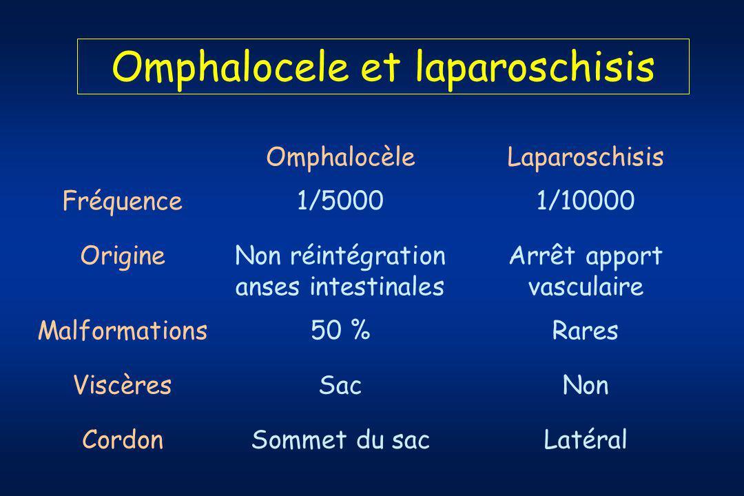 Omphalocele et laparoschisis