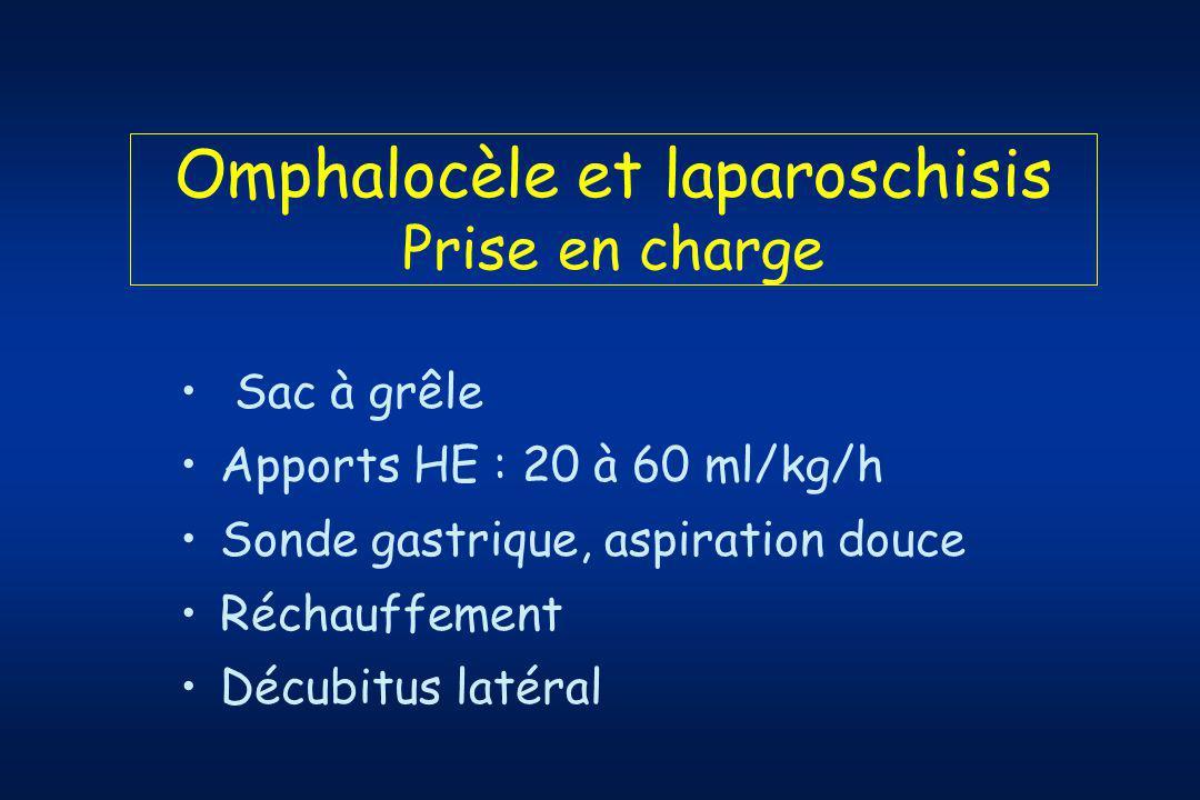Omphalocèle et laparoschisis Prise en charge