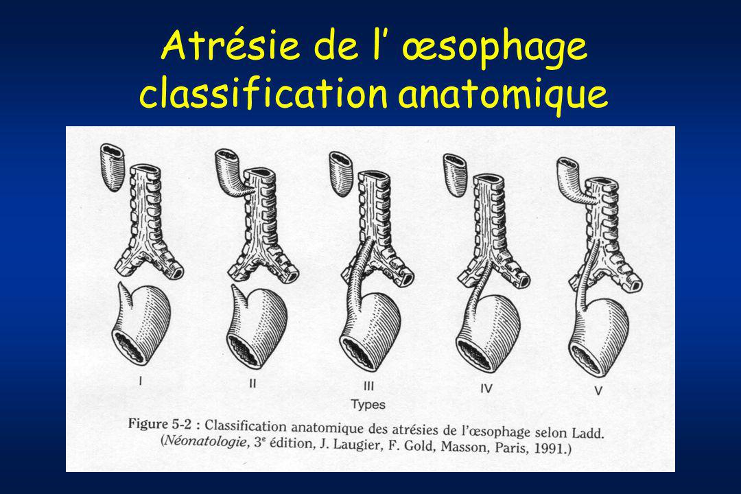 Atrésie de l' œsophage classification anatomique
