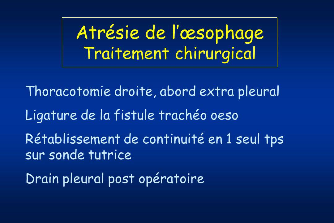 Atrésie de l'œsophage Traitement chirurgical
