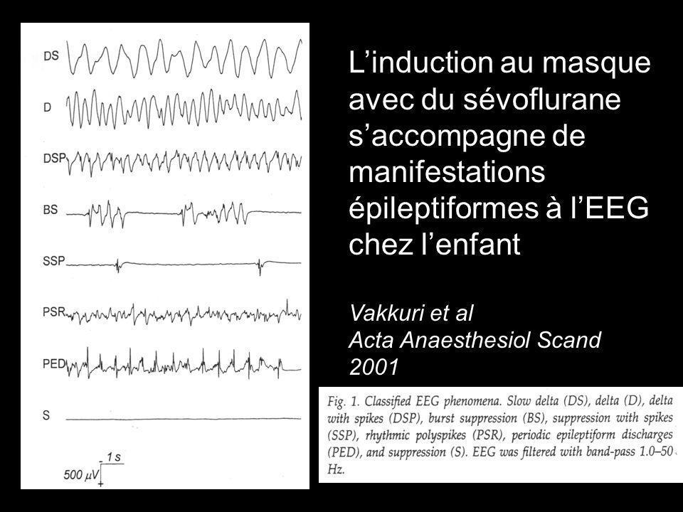 L'induction au masque avec du sévoflurane s'accompagne de manifestations épileptiformes à l'EEG chez l'enfant