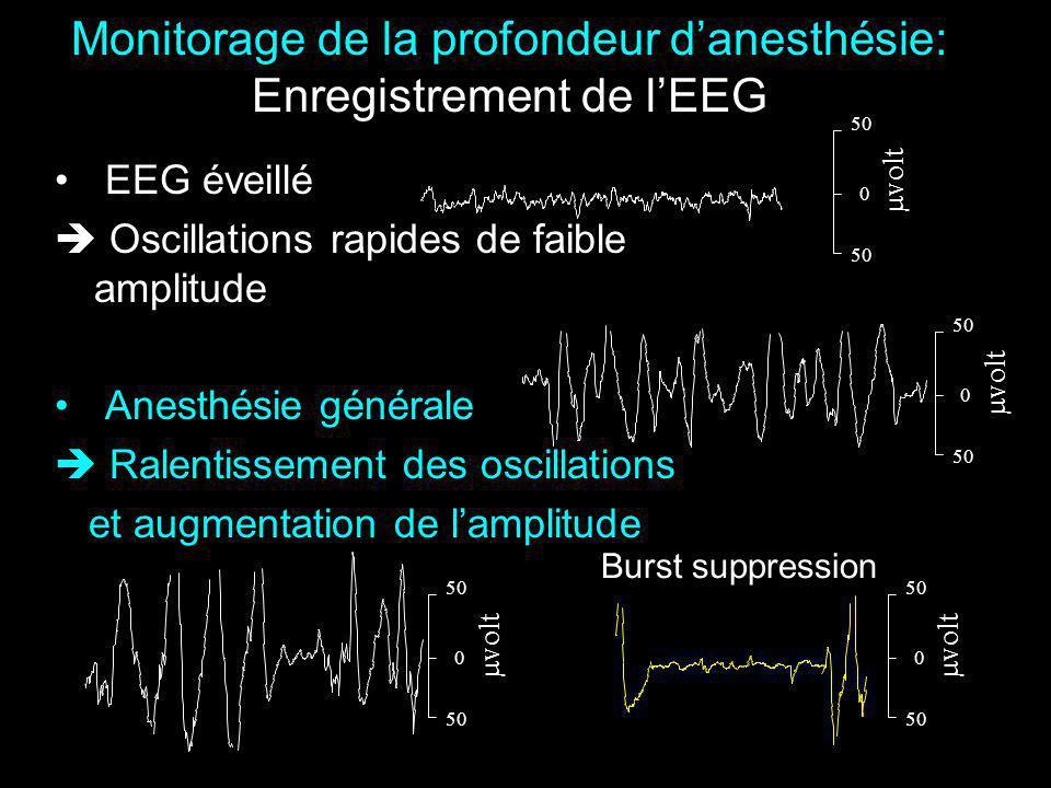 Monitorage de la profondeur d'anesthésie: Enregistrement de l'EEG