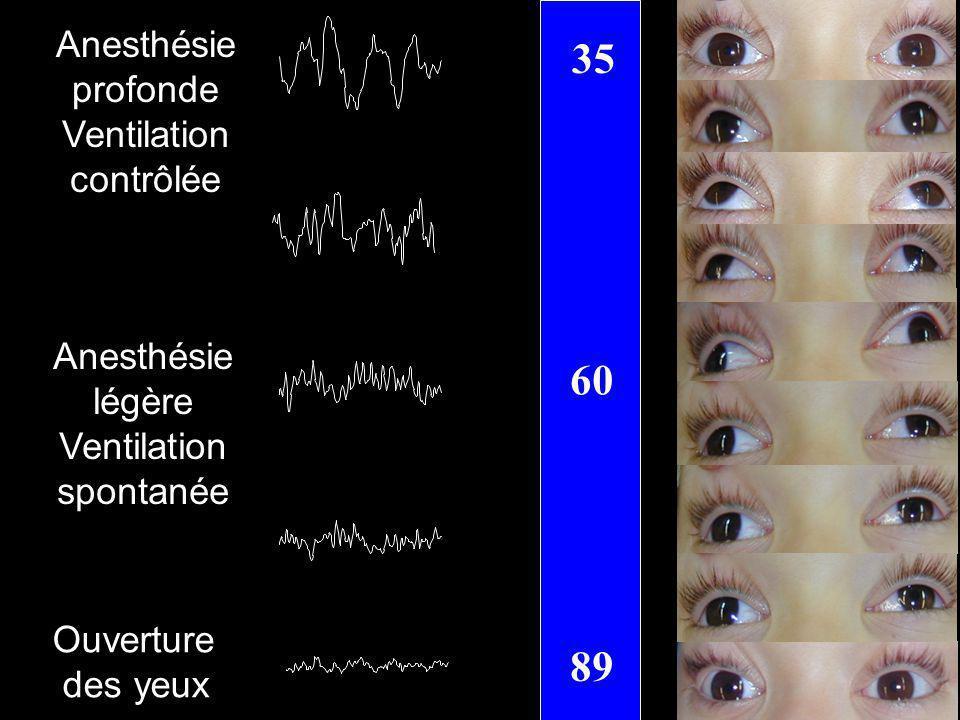 35 60 89 Anesthésie profonde Ventilation contrôlée Anesthésie légère