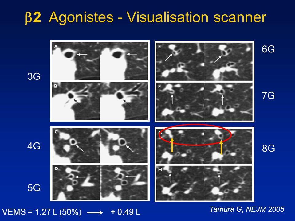 2 Agonistes - Visualisation scanner
