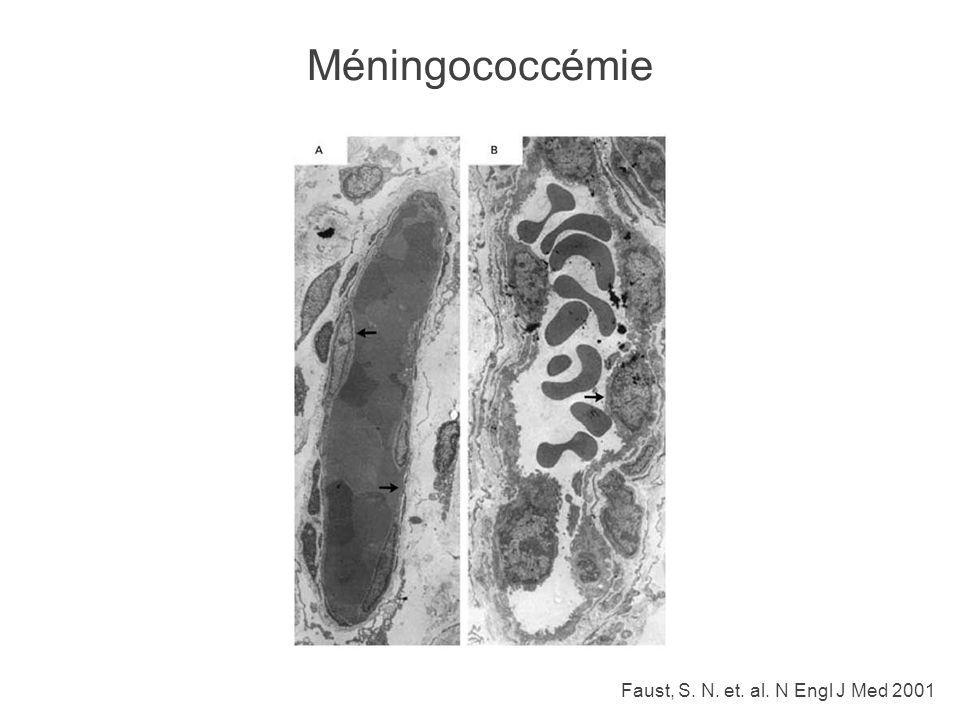Méningococcémie Faust, S. N. et. al. N Engl J Med 2001