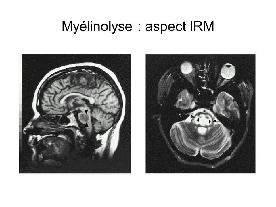 Myélinolyse : aspect IRM
