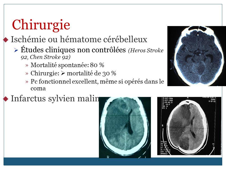 Chirurgie Ischémie ou hématome cérébelleux Infarctus sylvien malin