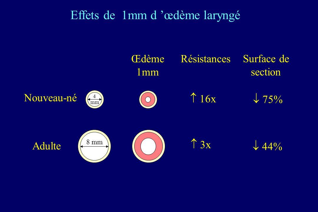 Effets de 1mm d 'œdème laryngé