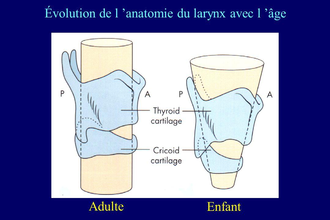 Évolution de l 'anatomie du larynx avec l 'âge