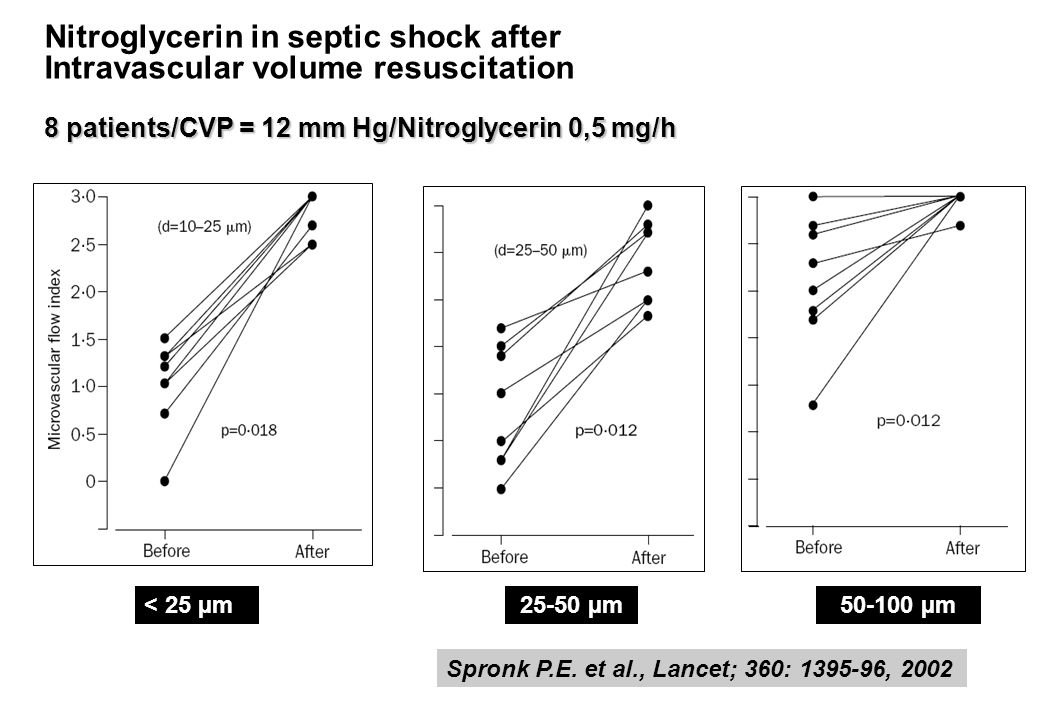 Nitroglycerin in septic shock after Intravascular volume resuscitation