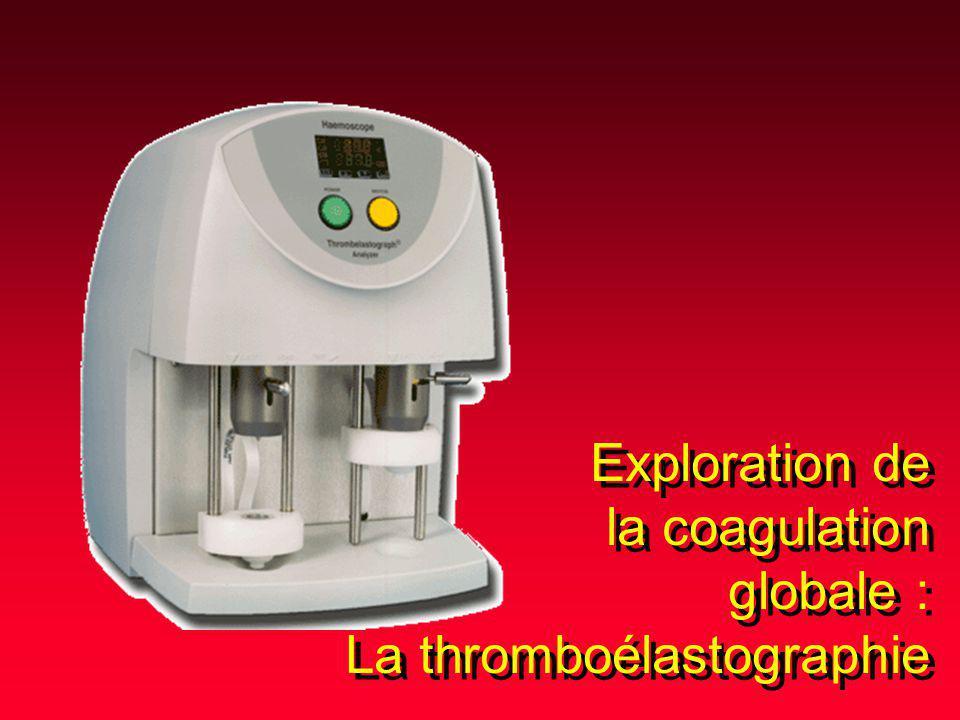 Exploration de la coagulation globale : La thromboélastographie