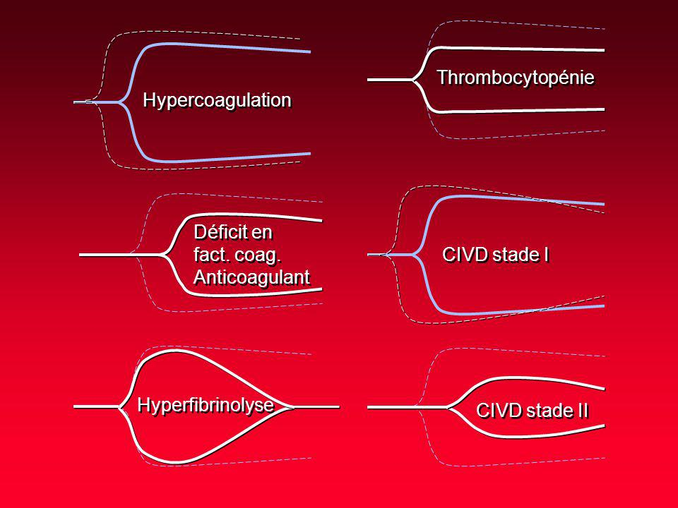 Thrombocytopénie Hypercoagulation. Déficit en. fact. coag. Anticoagulant. CIVD stade I. Hyperfibrinolyse.