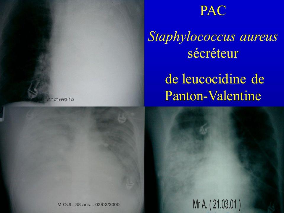 Staphylococcus aureus sécréteur