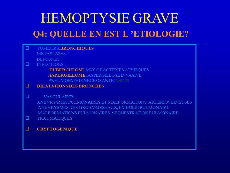 HEMOPTYSIE GRAVE Q4: QUELLE EN EST L 'ETIOLOGIE TUMEURS:BRONCHIQUES