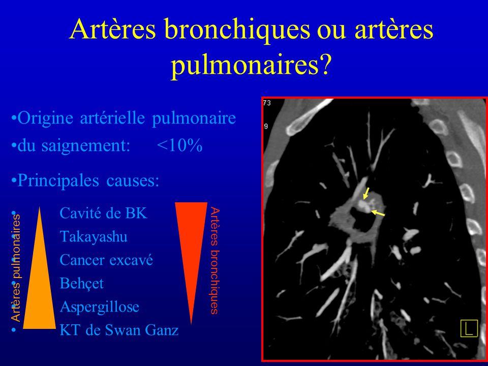Artères bronchiques ou artères pulmonaires