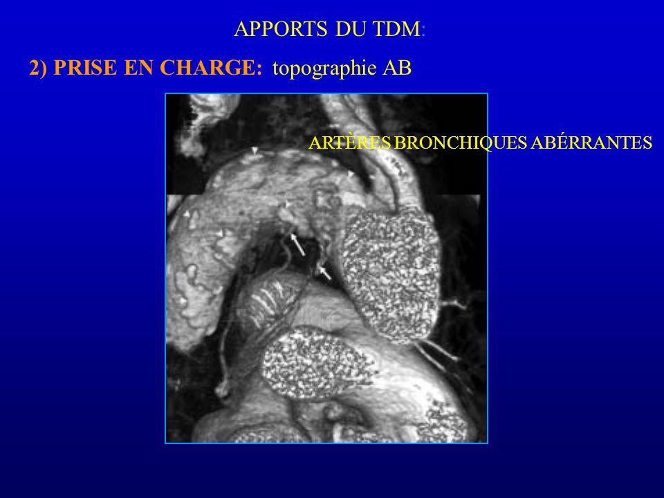 APPORTS DU TDM: 2) PRISE EN CHARGE: topographie AB