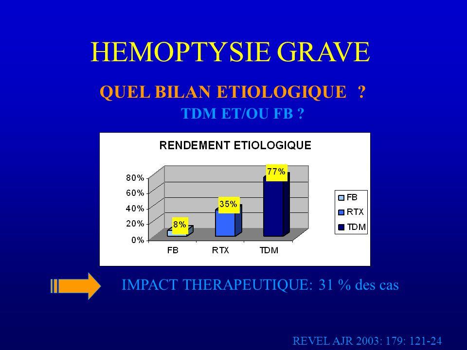 HEMOPTYSIE GRAVE QUEL BILAN ETIOLOGIQUE TDM ET/OU FB