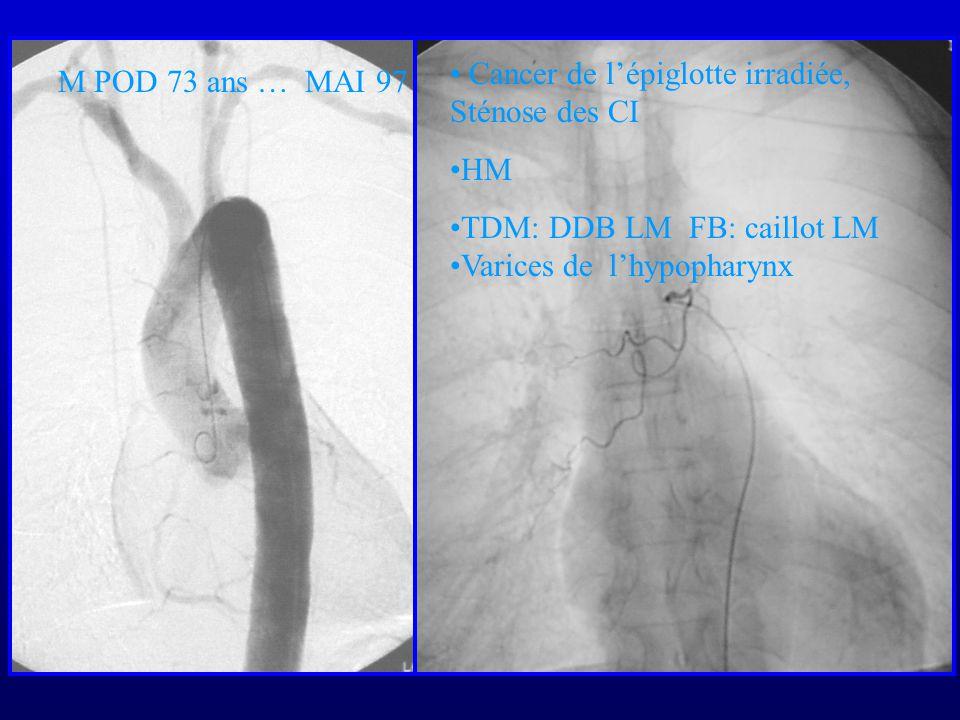 Cancer de l'épiglotte irradiée, Sténose des CI