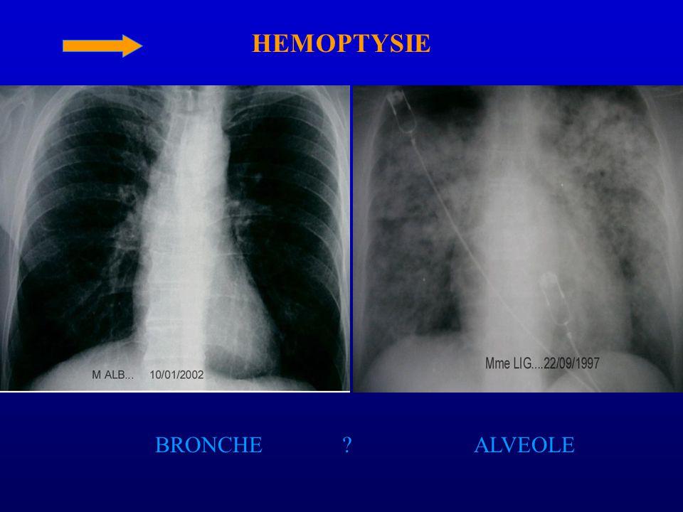 HEMOPTYSIE BRONCHE ALVEOLE