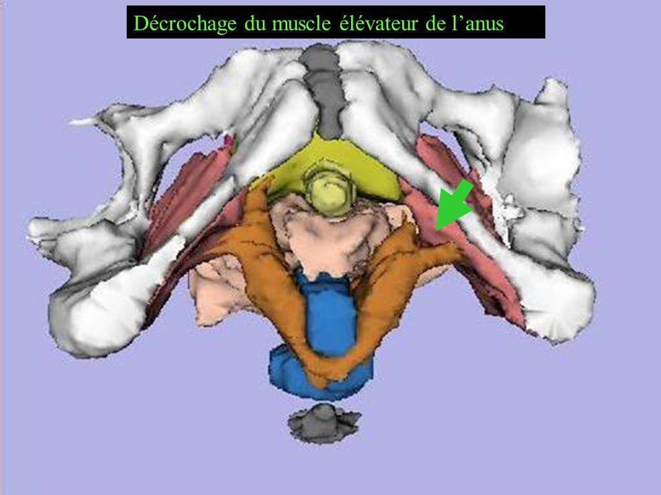 Décrochage du muscle élévateur de l'anus