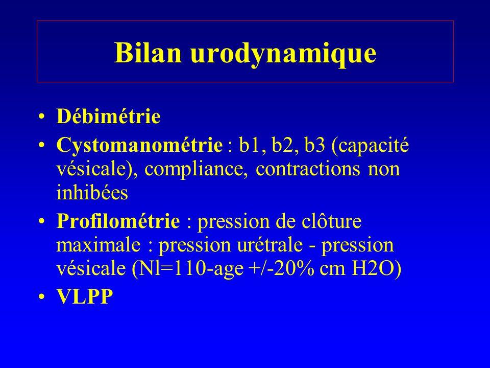 Bilan urodynamique Débimétrie