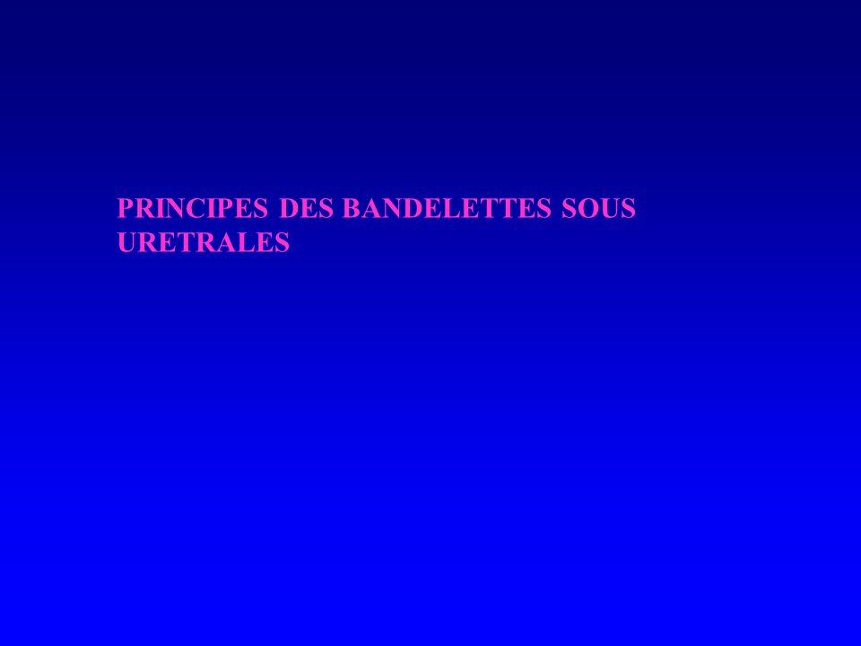 PRINCIPES DES BANDELETTES SOUS URETRALES