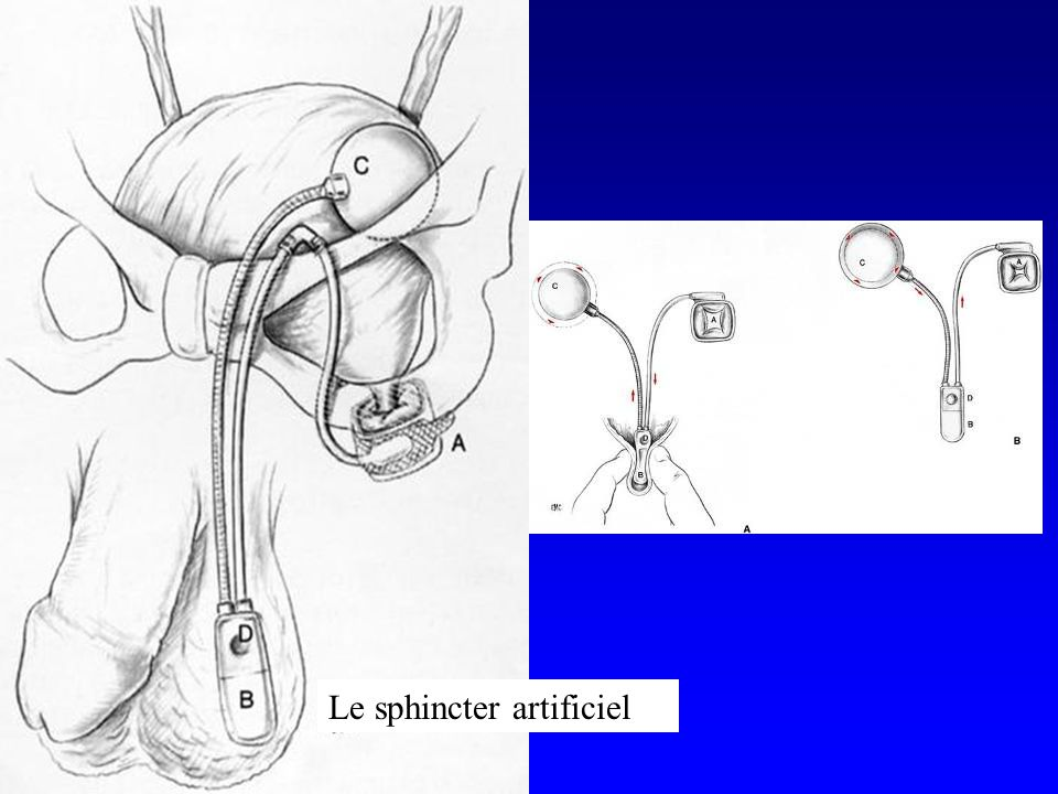 Le sphincter artificiel