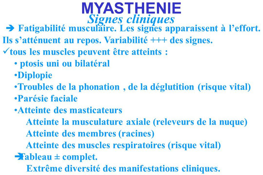 MYASTHENIE Signes cliniques