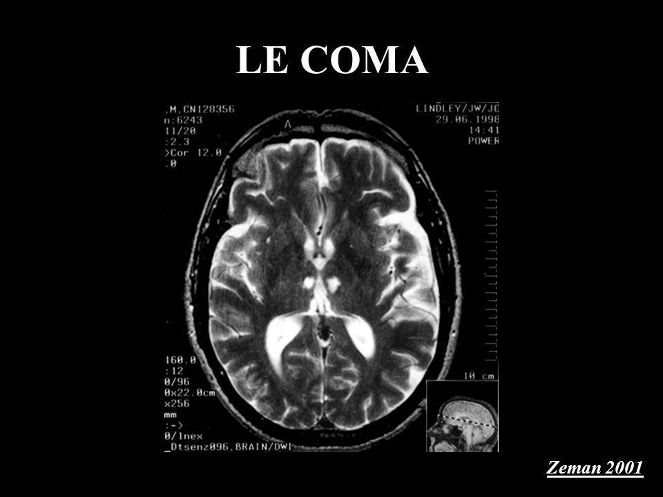 LE COMA Zeman 2001