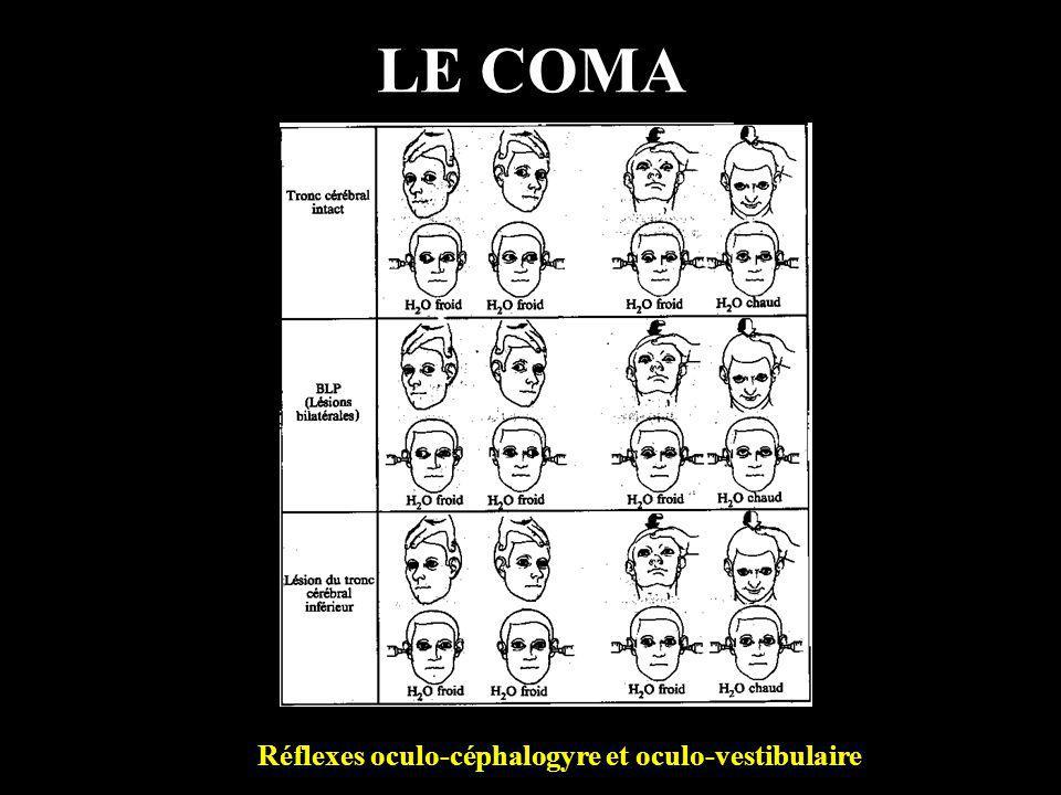 Réflexes oculo-céphalogyre et oculo-vestibulaire