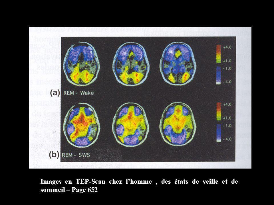 Images en TEP-Scan chez l'homme , des états de veille et de sommeil – Page 652