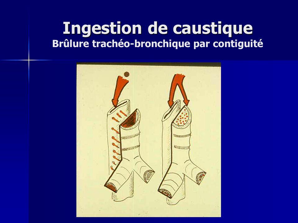 Ingestion de caustique Brûlure trachéo-bronchique par contiguité