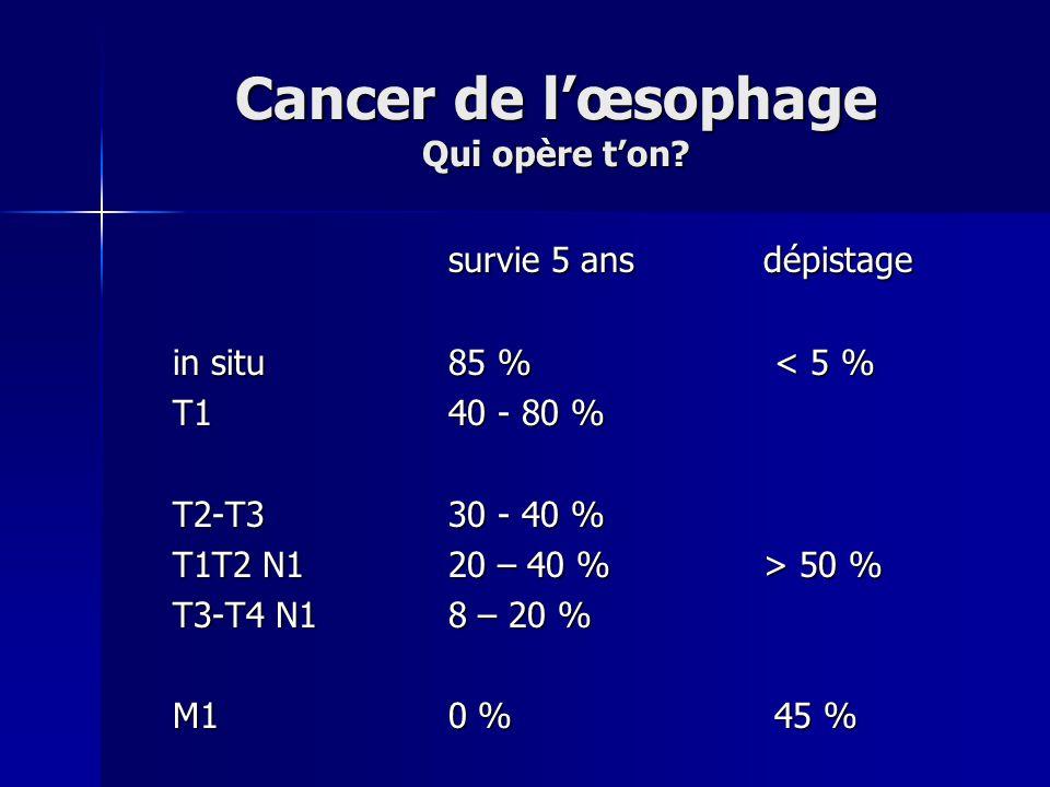 Cancer de l'œsophage Qui opère t'on