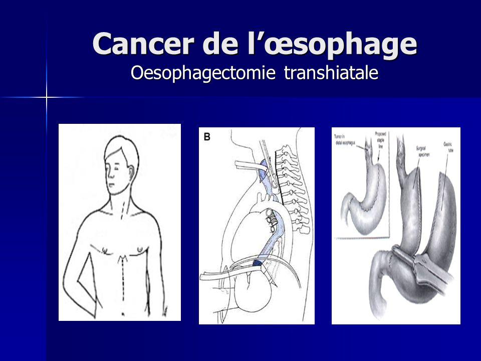 Cancer de l'œsophage Oesophagectomie transhiatale