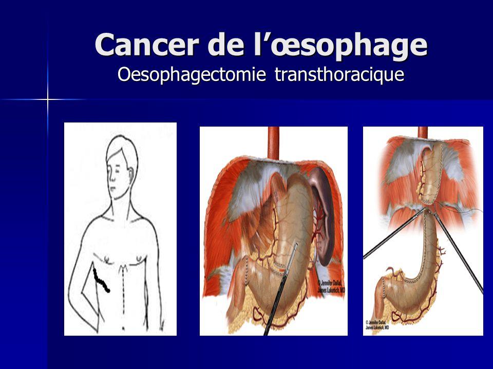 Cancer de l'œsophage Oesophagectomie transthoracique