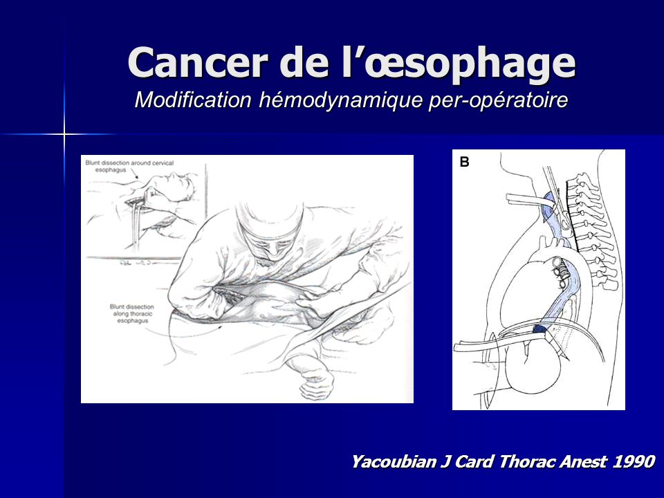 Cancer de l'œsophage Modification hémodynamique per-opératoire