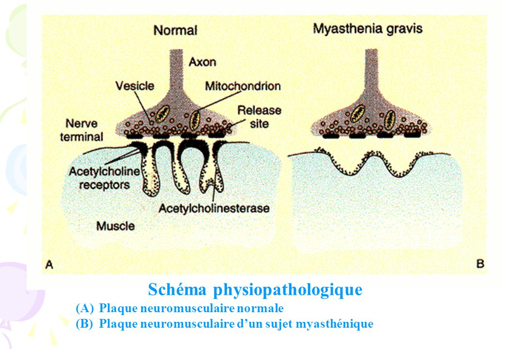 Schéma physiopathologique