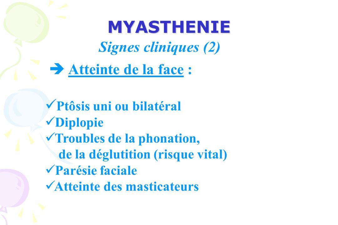 MYASTHENIE Signes cliniques (2)  Atteinte de la face :