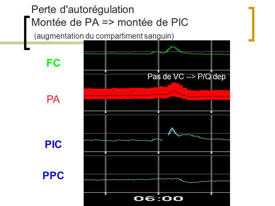 Perte d autorégulation Montée de PA => montée de PIC (augmentation du compartiment sanguin)