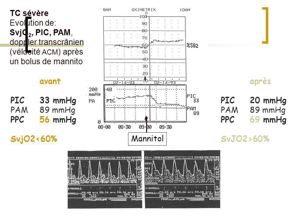 TC sévère Evolution de: SvjO2, PIC, PAM, doppler transcrânien (vélocité ACM) après un bolus de mannitol.