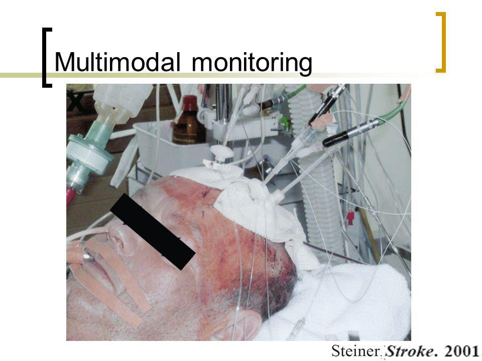Multimodal monitoring