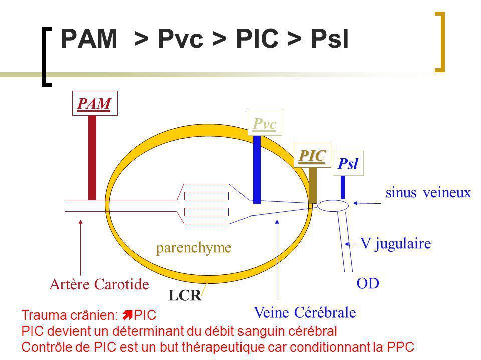 PAM > Pvc > PIC > Psl