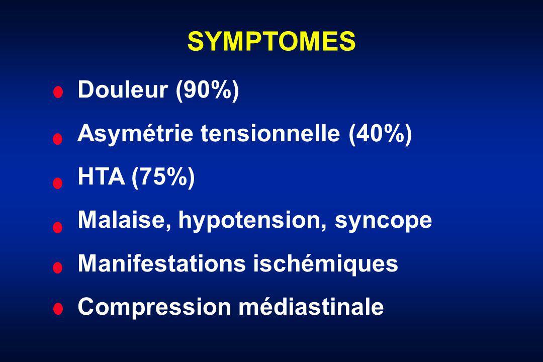SYMPTOMES Douleur (90%) Asymétrie tensionnelle (40%) HTA (75%)
