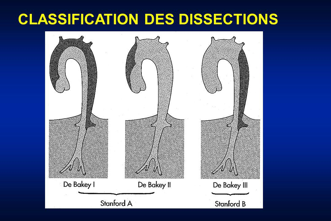 CLASSIFICATION DES DISSECTIONS