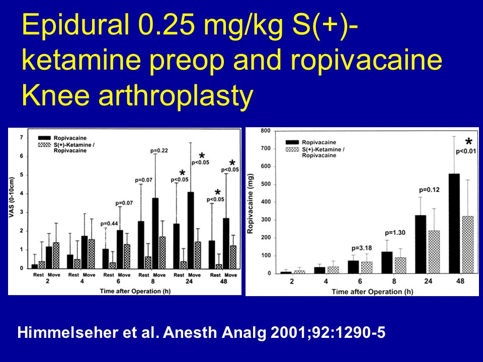 Epidural 0.25 mg/kg S(+)-ketamine preop and ropivacaine Knee arthroplasty